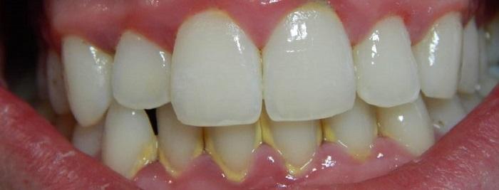 Máy lấy cao răng bằng siêu âm