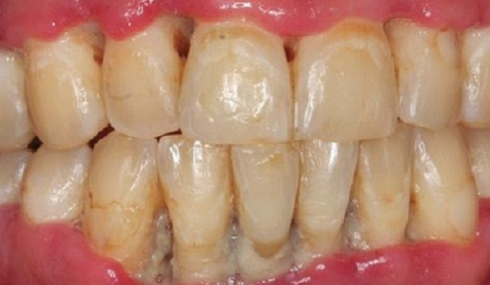 Máy lấy cao răng giá bao nhiêu