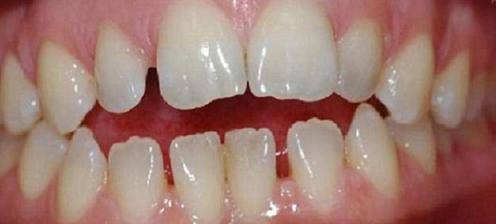 Nên lấy cao răng ở đâu hà nội