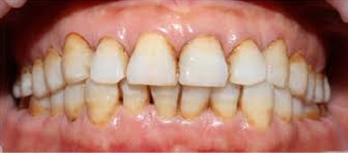 Thiết bị lấy cao răng tại nhà