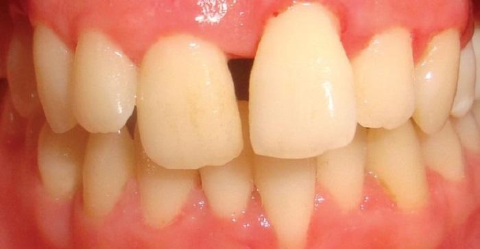 Tự lấy cao răng bằng cách nào