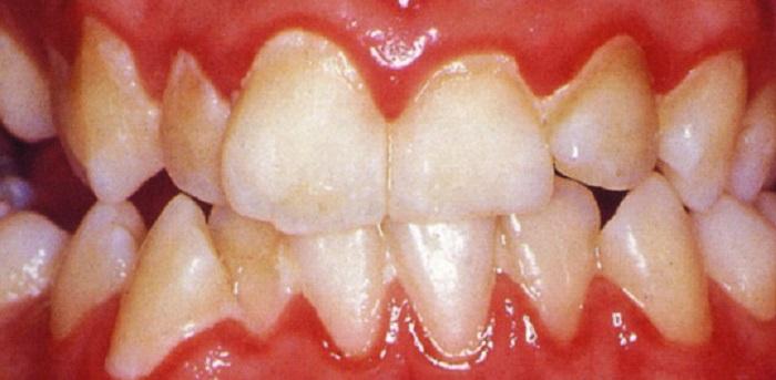 Video lấy cao răng bằng máy siêu âm