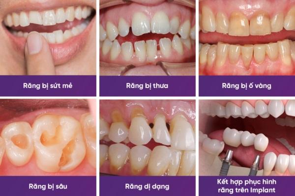 Bọc răng sứ HT Smile