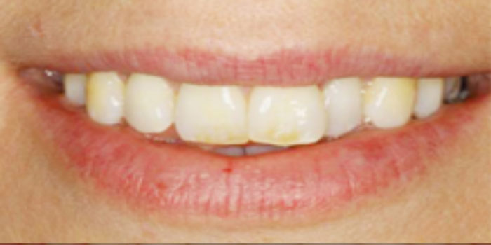Bộ răng sứ bao nhiêu tiền