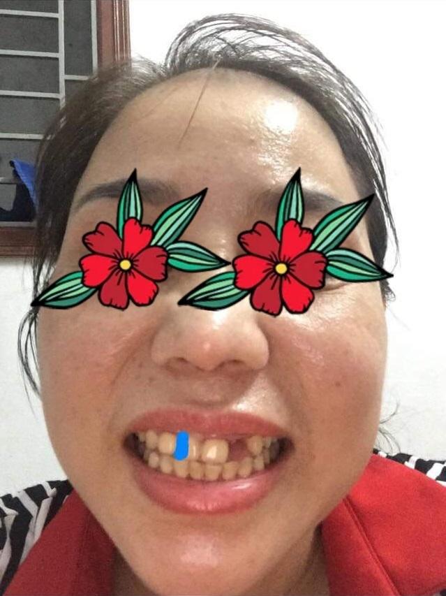 bọc răng sứ 1 cái bao nhiêu