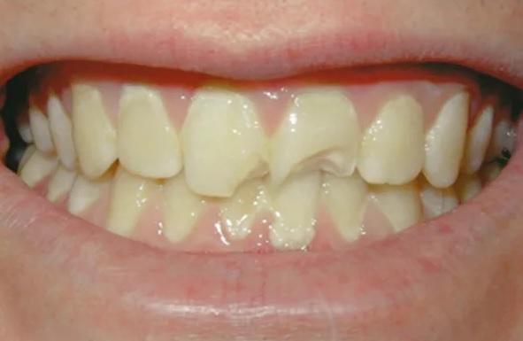 bọc răng sứ 2 răng cửa bao nhiêu tiền