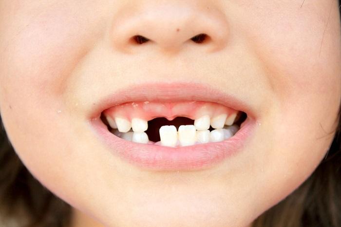 Bọc răng sứ bị đau nhức