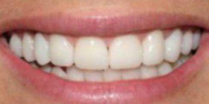 Bọc răng sứ bị ê buốt