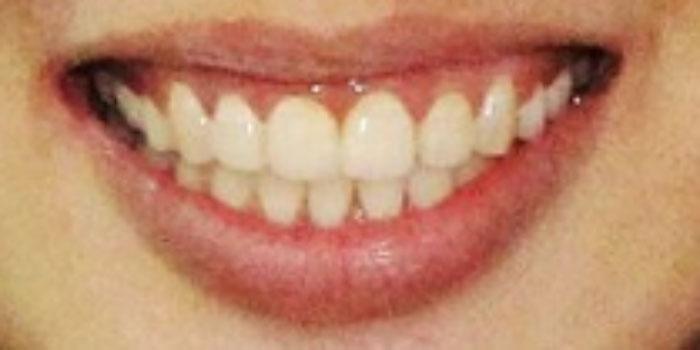 bọc răng sứ cho răng hô giá bao nhiêu