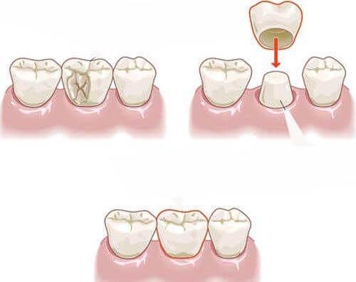bọc răng sứ cho răng sâu bao nhiêu tiền