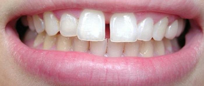 bọc răng sứ cho răng thưa giá bao nhiêu