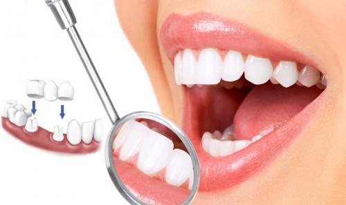 Bọc răng sứ giá cả