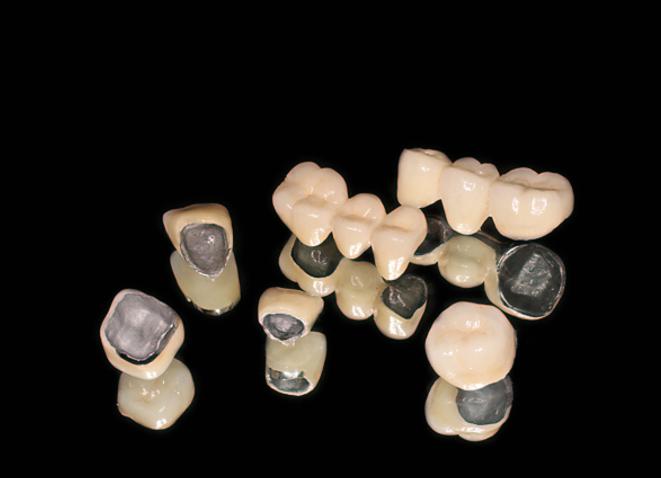 bọc răng sứ giá rẻ nhất là bao nhiêu