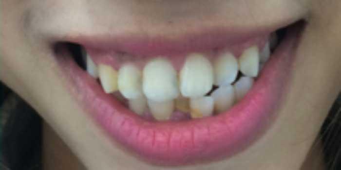 Bọc răng sứ hàm dưới và những điều cần biết | NhaKhoaSunShine.vn