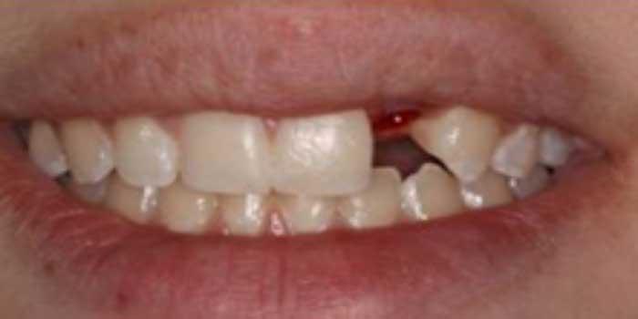 bọc răng sứ katana giá bao nhiêu