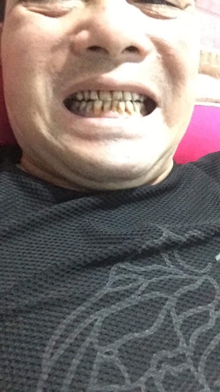 bọc răng sứ lấy tủy có đau không