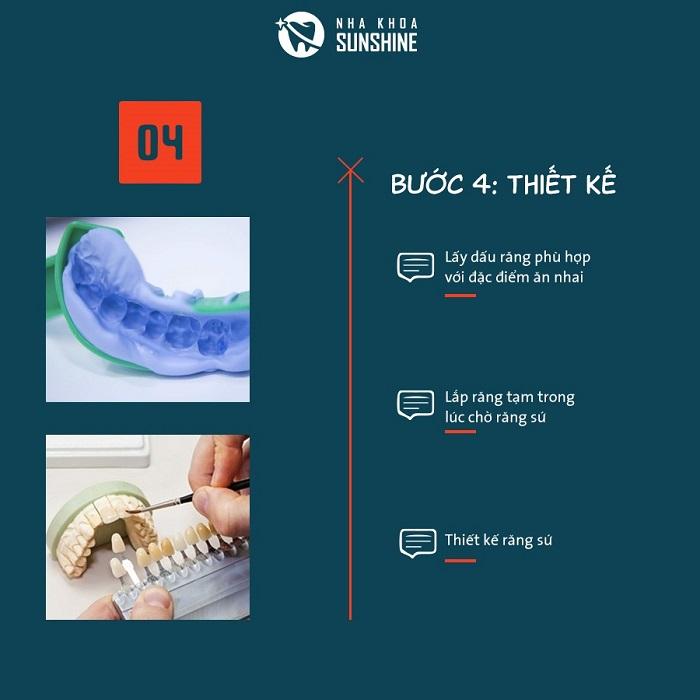 bọc răng sứ như thế nào