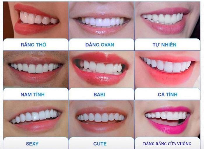 dáng răng sứ đẹp