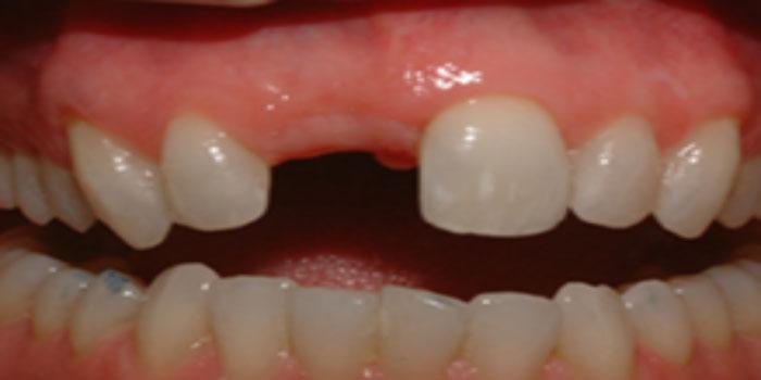 cầu răng sứ đẹp