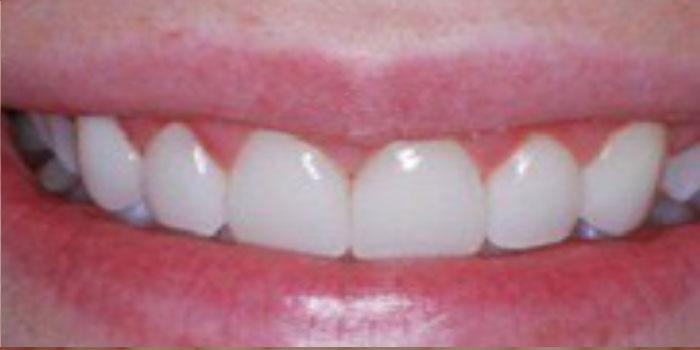Chân răng sứ bị hôi thì phải làm sao