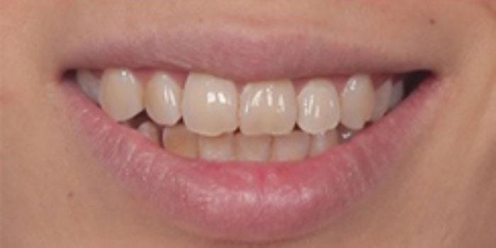 Chụp răng sứ bị đau thì phải làm sao