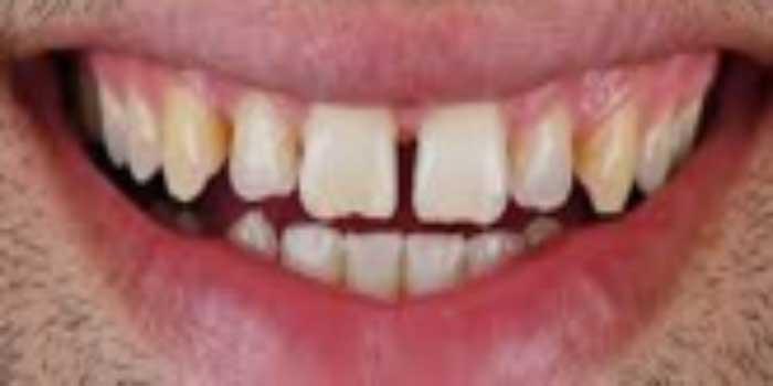 có nên bọc răng sứ katana