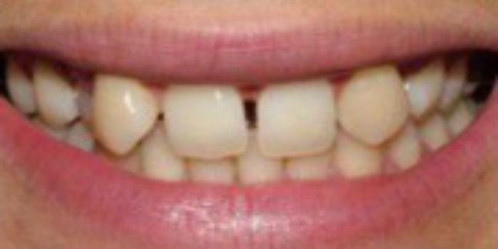 Dán răng sứ giá bao nhiêu tiền