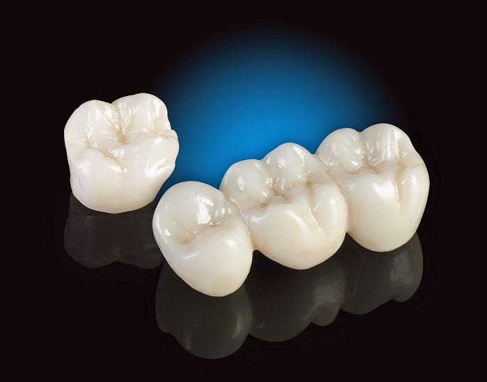 đánh giá răng sứ venus