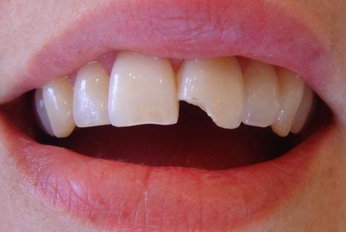 giá răng sứ cercon zirconia