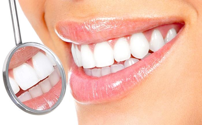 Miếng dán trắng răng crest bao nhiêu - Nha Khoa Sunshine