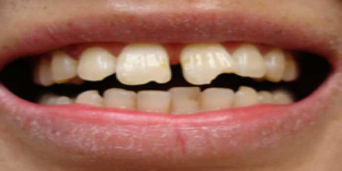 làm răng sứ có bị hôi miệng không