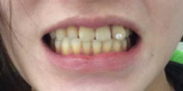 lắp răng sứ bao nhiêu tiền