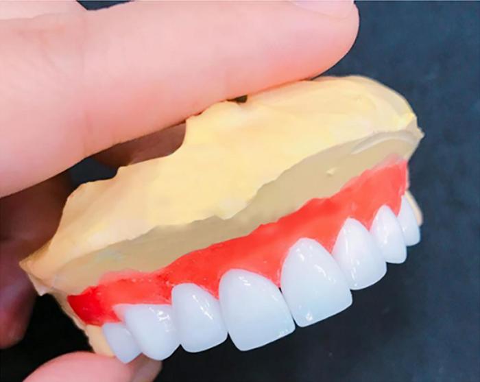 răng bọc sứ có niềng được không