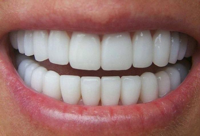 răng sứ bị lung lay