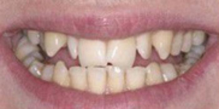 răng sứ đẹp giá bao nhiêu