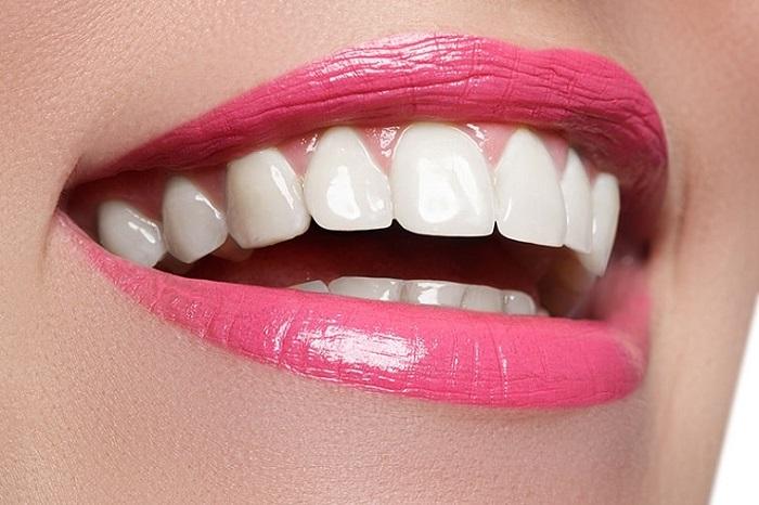 Răng sứ emax zircad