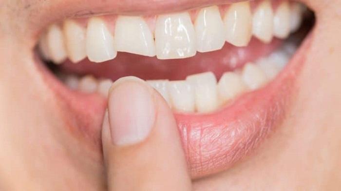 răng sứ emax zirconia