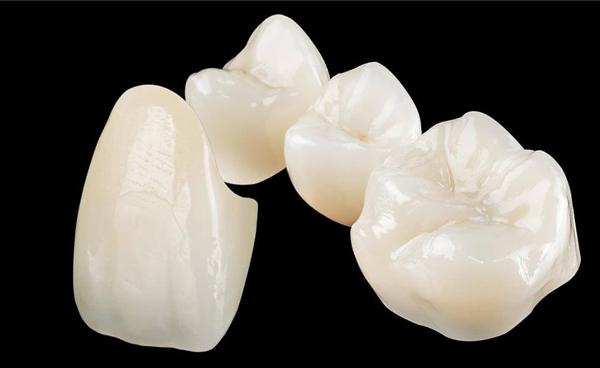 răng sứ katana có mấy loại