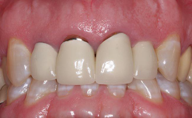răng sứ kim loại bị đen