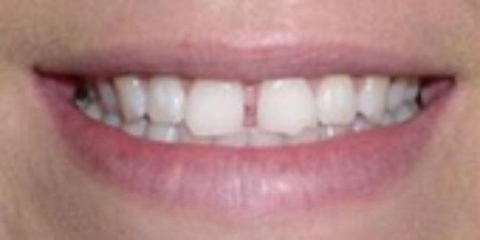 Răng sứ kim loại là gì? Có thể bạn chưa biết điều này!