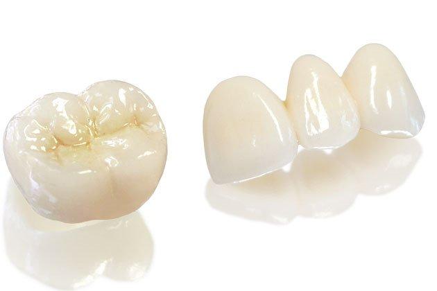 răng sứ kim loại mỹ có tốt không