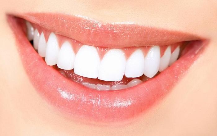 răng sứ roland là gì