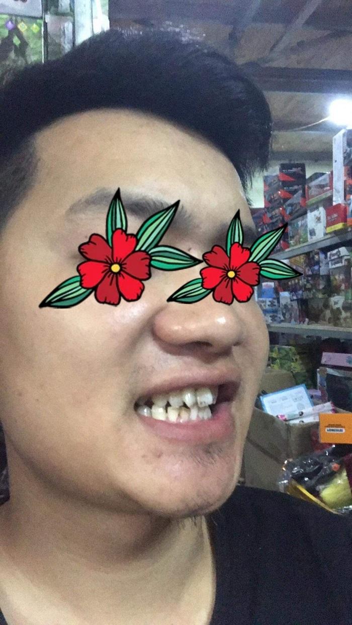 răng sứ Titan Vita có bị đen không