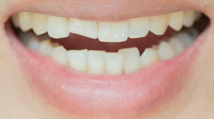 răng sứ venus plus