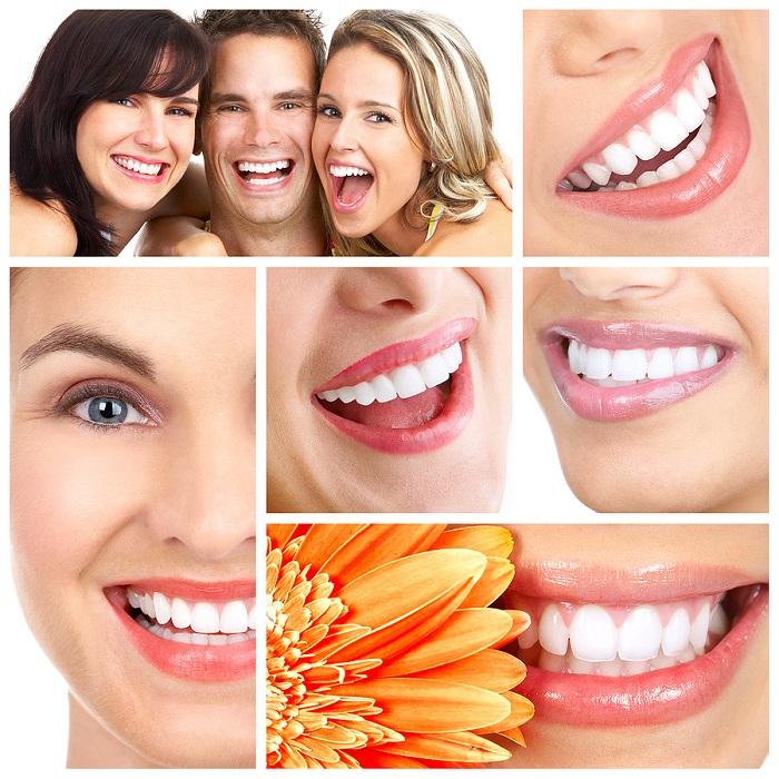 răng toàn sứ venus có tốt không