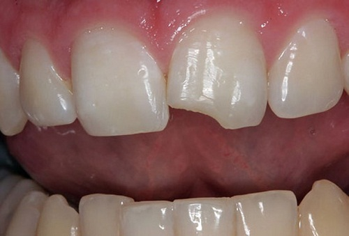 răng sứ ht smile giá bao nhiêu