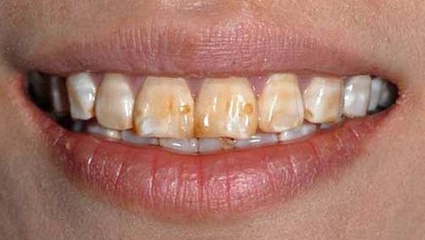 Răng sứ thường có tốt không