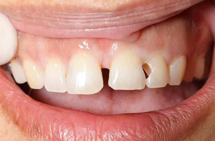 thẻ bảo hành răng sứ cercon ht